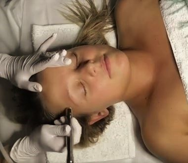 Formation Microneedling Montpellier